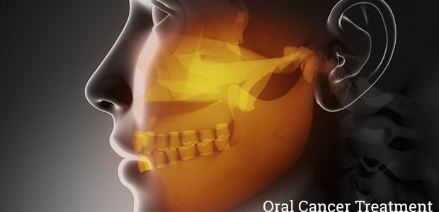 All about Cancer of Mouth, Nose, and Throat