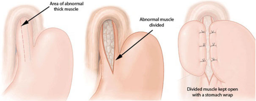How Successful is the Surgery for Achalasia Cardia?