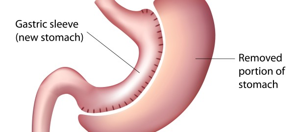 What are the Complications of Gastric Sleeve Surgery?