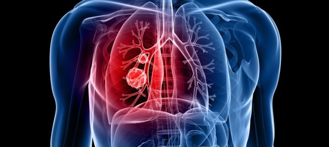 How does Lung Cancer Affect Our Body?