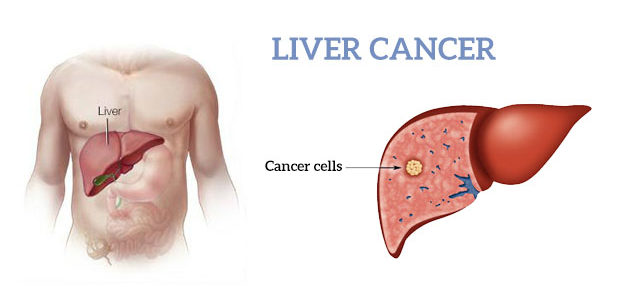 Liver Cancer: Types Of Treatments