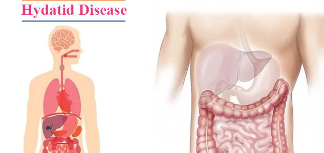 All You Should Know About Hydatid Disease