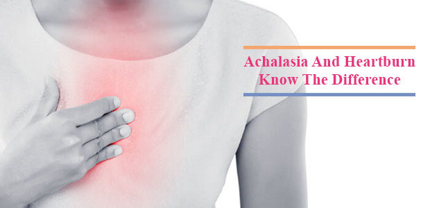 How Is Achalasia Different From Heartburn?